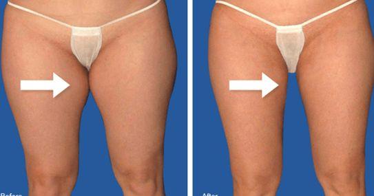 como bajar de peso sin aumentar masa muscular
